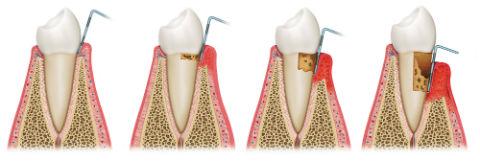 Dr. Ruben Garcia | Gum Disease Treatment | Katy, TX Dentist
