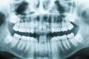 Dr. Ruben Garcia | Dental X-Rays | Katy, TX Dentist