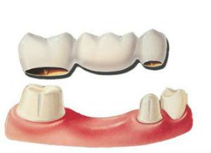 Dr. Ruben Garcia | Dental Bridges | Katy, TX Dentist
